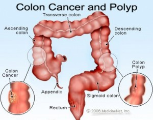 colon caner and polyp