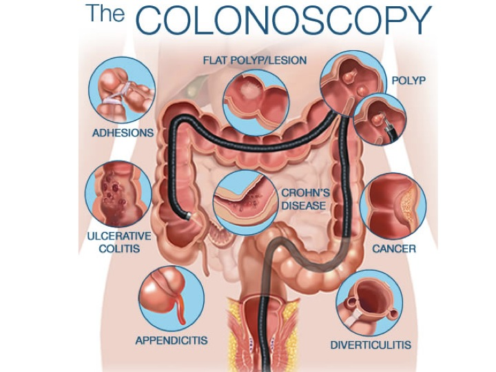Surgery Procedures Mcconnell Colorectal Centermcconnell Colorectal Center